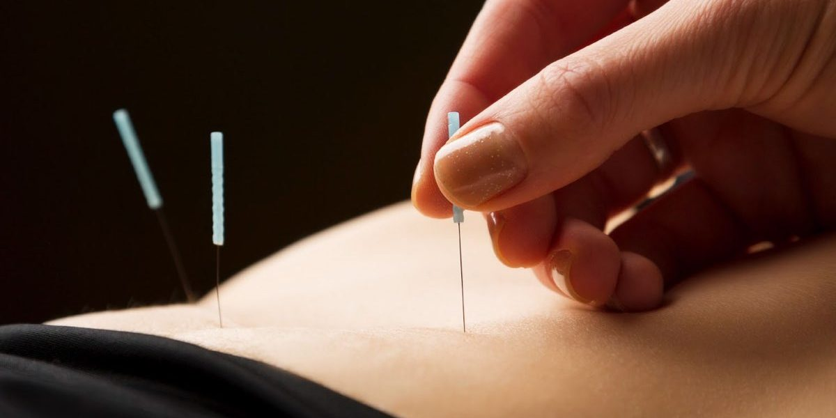 Acupuncture Essendon Natural Health